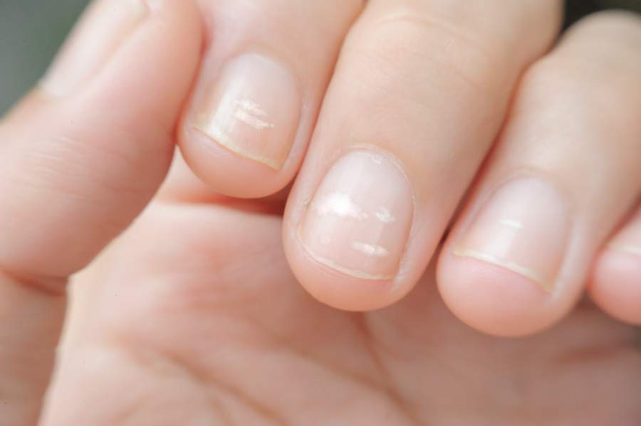 Weiße Flecken auf den Fingernägeln, lateinisch: Leukonychia punctata